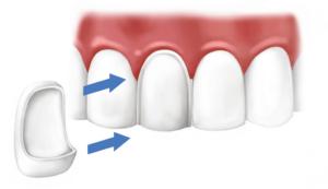 Реставрация зубов, виниры