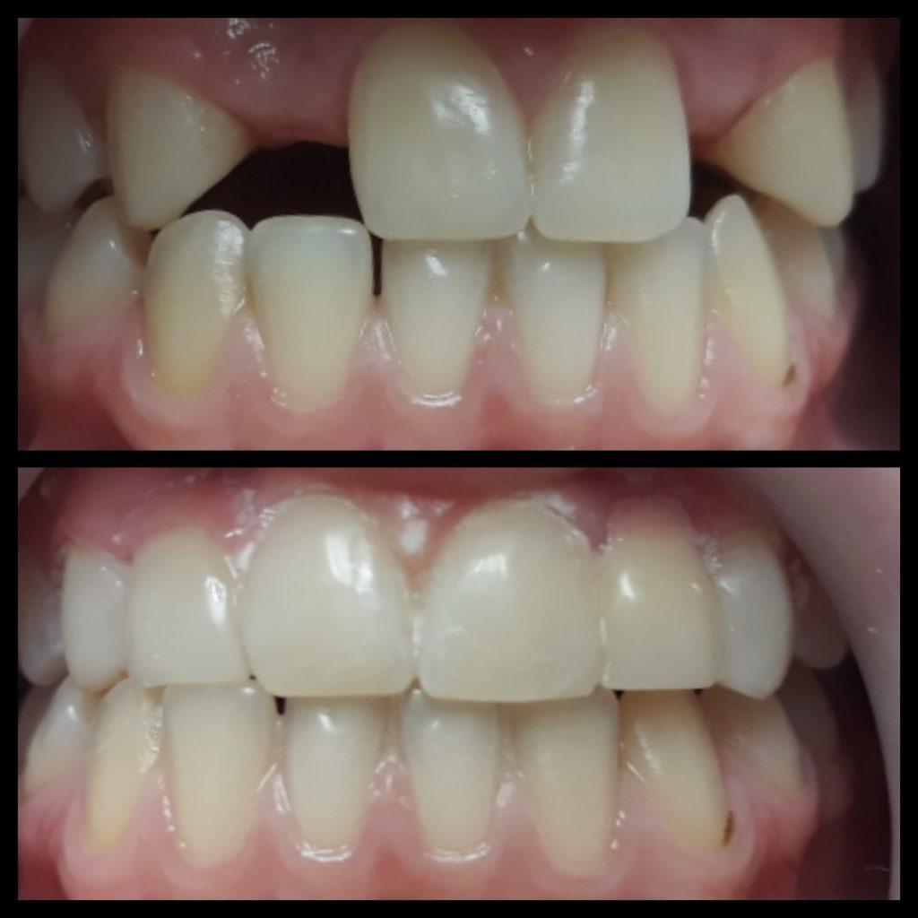 протезирование зубов в минске