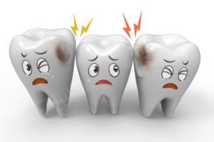 Кариес зубов и его лечение